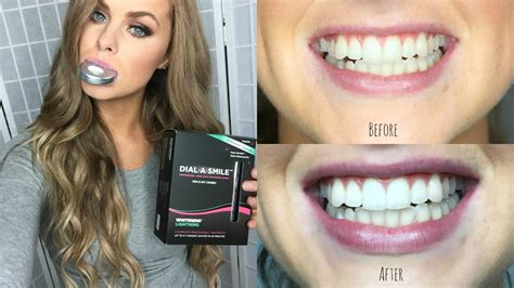 ♡How to Whiten Your Teeth at Home: Gerard Cosmetics Dial-A