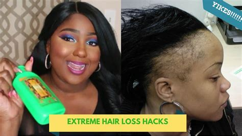 GASTRIC BYPASS CAUSES HAIR LOSS? DEITY AMERICA - YouTube