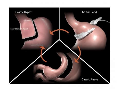 Revisional Bariatric Surgery: A Second Chance for a Weight