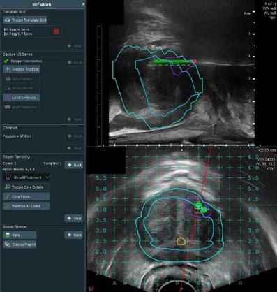 Ultrasound Adds Valuable Information to Help Plan Prostate
