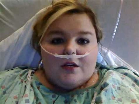 1 day post-op Gastric Sleeve - YouTube