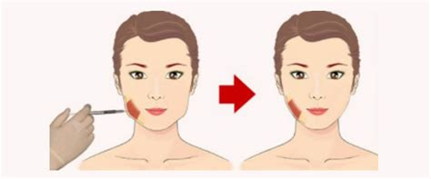 Jaw Reduction using Botox: Is that Possible? - 2pass Clinic