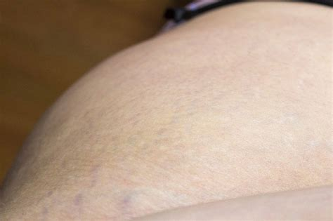Testing the Science of Skin Solutions for Stretch Marks